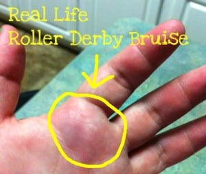 bruise 300x254 Roller Derby: I Made it To Group One!!